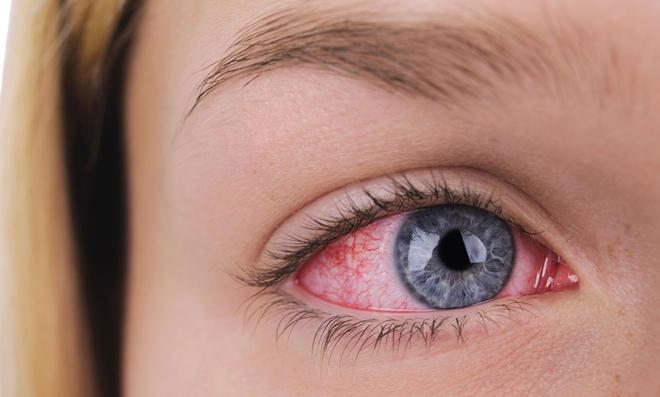 Die richtige Behandlung für Ihre Augen